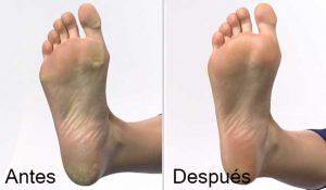 Hydra Power Concentrado antiresecamiento para los pies - antes y después